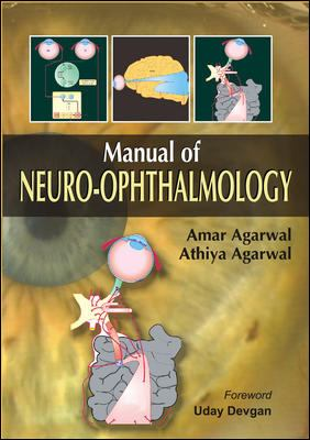 Manual of Neuro-Ophthalmology 9780071632317