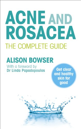 Acne and Rosacea: The Complete Guide 9780091929701