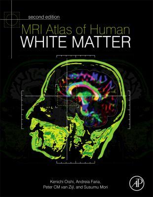 MRI Atlas of Human White Matter 9780123820815
