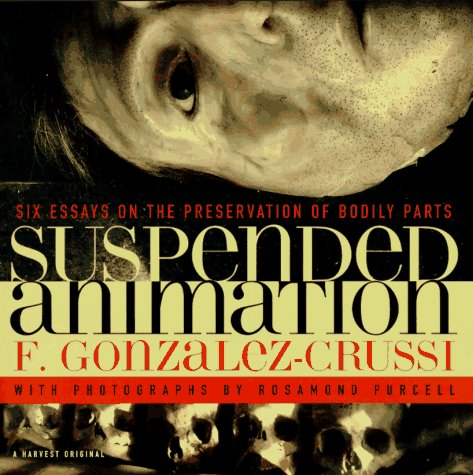 Suspended Animation: Six Essays on the Preservation of Bodily Parts 9780156002318