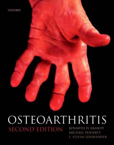 Osteoarthritis 9780198509677