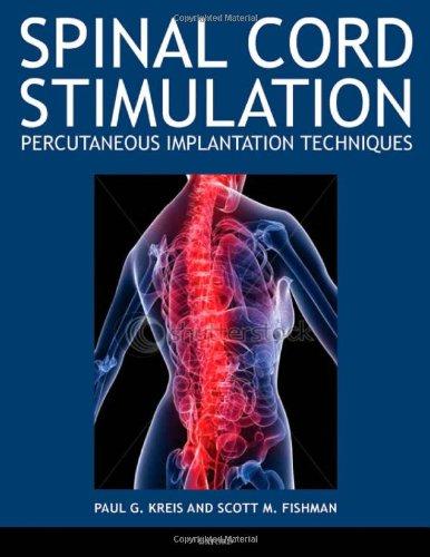 Spinal Cord Stimulation: Percutaneous Implantation Techniques