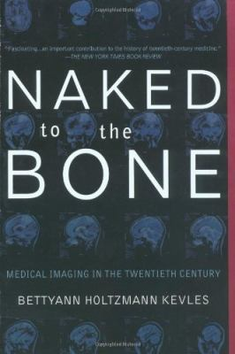 Naked to the Bone: Medical Imaging in the Twentieth Century 9780201328332