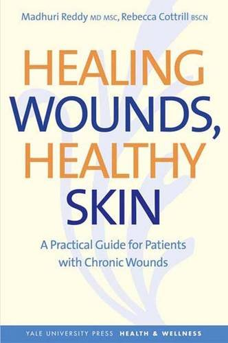 Healing Wounds, Healthy Skin: A Practical Guide for Patients with Chronic Wounds 9780300140361