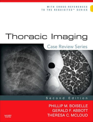 Thoracic Imaging 9780323029995