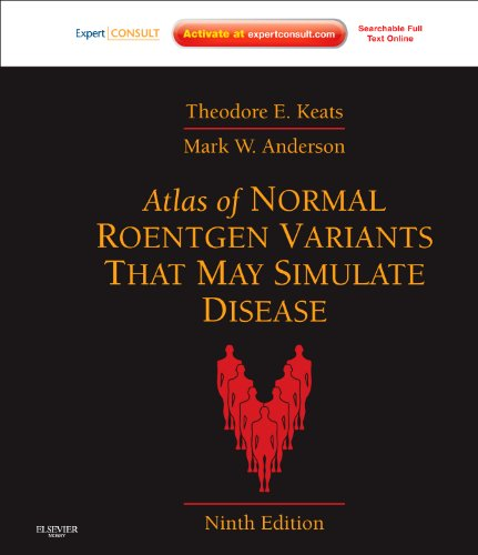 Atlas of Normal Roentgen Variants That May Simulate Disease: Expert Consult - Enhanced Online Features and Print 9780323073554