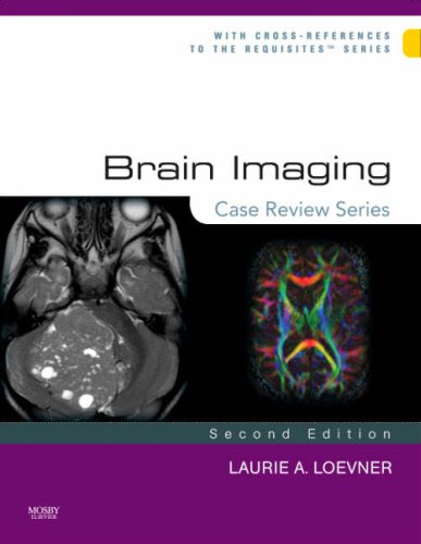 Brain Imaging 9780323031790