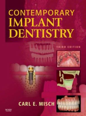 Contemporary Implant Dentistry 9780323043731