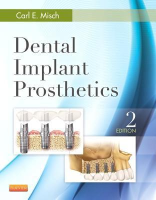 Dental Implant Prosthetics - 2nd Edition