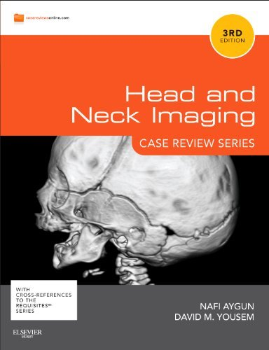 Head and Neck Imaging 9780323078948