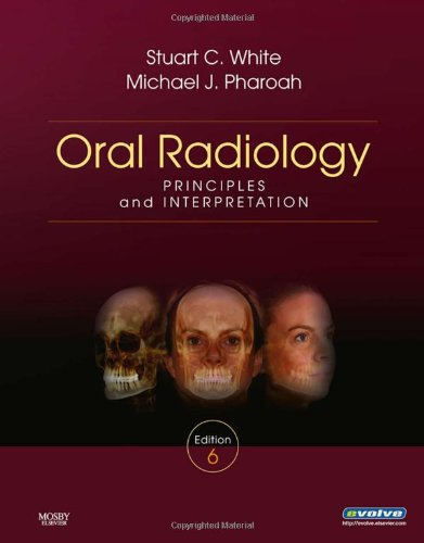 Oral Radiology: Principles and Interpretation 9780323049832