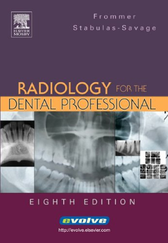 Radiology for the Dental Professional 9780323030717