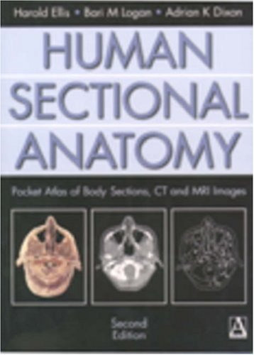 Human Sectional Anatomy: Pocket Atlas of Body Sections, CT and MRI Images 9780340807644
