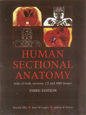 Human Sectional Anatomy: Atlas of Body Sections, CT and MRI Images 9780340912225