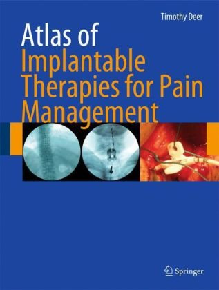 Atlas of Implantable Therapies for Pain Management 9780387885667