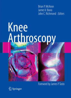 Knee Arthroscopy 9780387895031