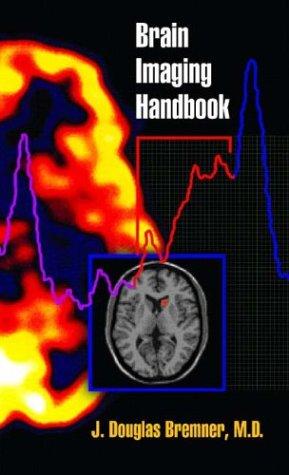 Brain Imaging Handbook 9780393704143