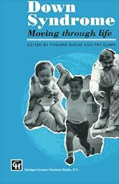 Down Sydrome: Moving Through Life 1290078