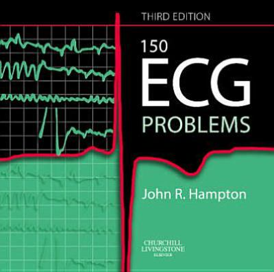 150 ECG Problems 9780443068232