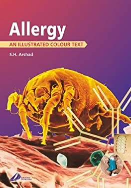 Allergy: An Illustrated Colour Text 9780443062711