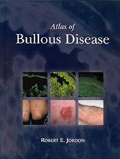 Atlas of Bullous Disease - Jordon, Robert E. / Jordan, Robert E.
