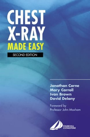 Chest X-Ray Made Easy 9780443070082