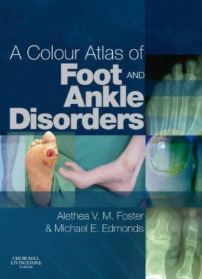 A Colour Atlas of Foot and Ankle Disorders 9780443102073