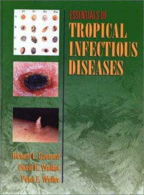 Essentials of Tropical Infectious Disease 9780443079092