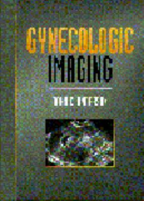 Gynaecologic Imaging 9780443052392