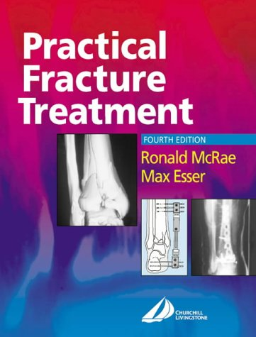 Practical Fracture Treatment 9780443070389