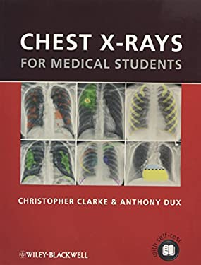 Chest X-Rays for Medical Students 9780470656198