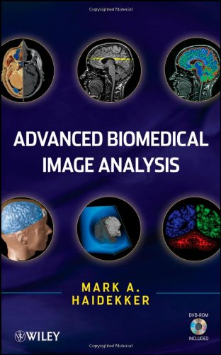 Advanced Biomedical Image Analysis [With CDROM] 9780470624586
