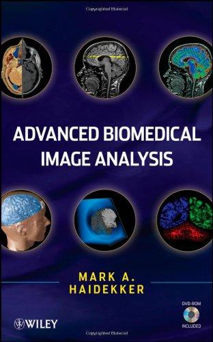 Advanced Biomedical Image Analysis [With CDROM] 9780470624586