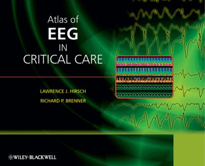 Atlas of EEG in Critical Care 9780470987865
