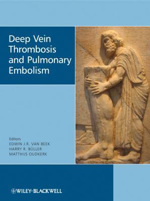 Deep Vein Thrombosis and Pulmonary Embolism 9780470517178
