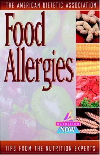 Food Allergies 9780471347149