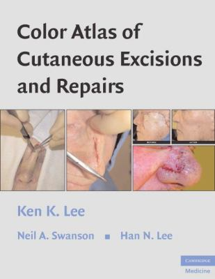 Color Atlas of Cutaneous Excisions and Repairs 9780521860246