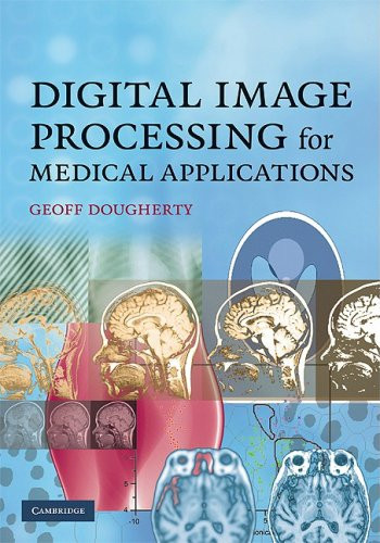 Digital Image Processing for Medical Applications 9780521860857