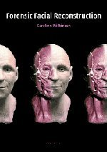 - Forensic-Facial-Reconstruction-Wilkinson-Caroline-9780521820035