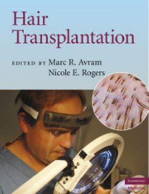 Hair Transplantation 9780521879675