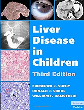 Liver Disease in Children 9780521856577