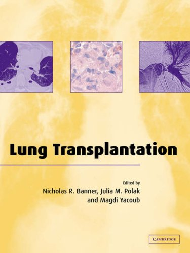 Lung Transplantation 9780521036771