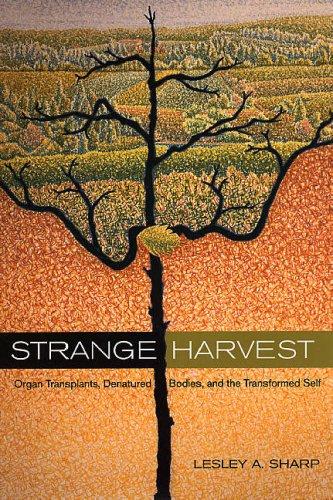 Strange Harvest: Organ Transplants, Denatured Bodies, and the Transformed Self 9780520247864