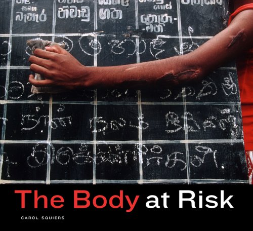 The Body at Risk: Photography of Disorder, Illness, and Healing 9780520247338