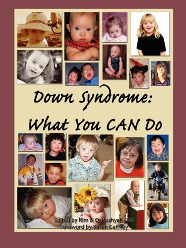 Down Syndrome: What You Can Do 9780615259161