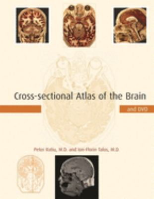 Cross-Sectional Atlas of the Brain [With DVD-ROM] 9780674019232