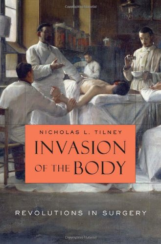 Invasion of the Body: Revolutions in Surgery 9780674062283