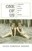 One of Us: Conjoined Twins and the Future of Normal 9780674018259