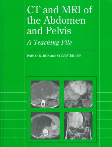 CT and MRI of the Abdomen and Pelvis: A Teaching File 9780683182187