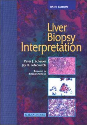 Liver Biopsy Interpretation 9780702025020